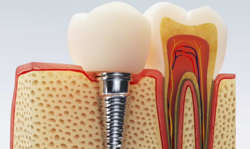 Step by step guide to root canal treatment